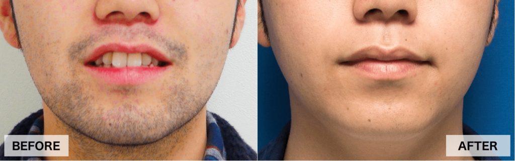 ゴリラクリニックの顎髭脱毛の効果の様子