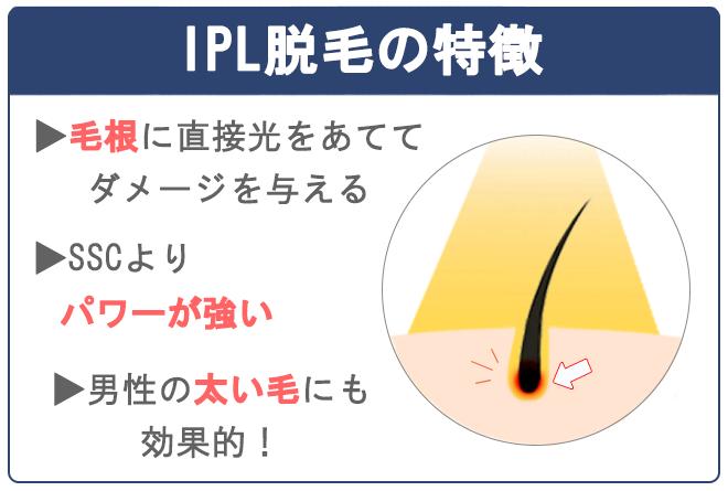 IPL脱毛は、毛根に直接光を当てる脱毛方法。