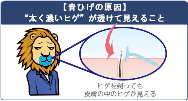 青髭は濃いヒゲが皮膚からすけている状態