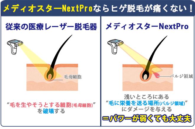 """メディオスターNext Proは皮膚の浅いところにある""""毛に栄養を送る場所(バルジ領域)""""にダメージを与えるので、パワーが弱くても効果がありその分痛みを抑えられる。"""