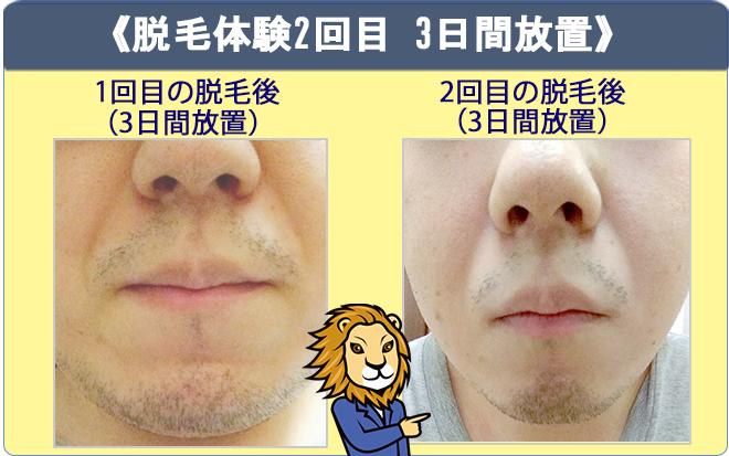 リンクスのヒゲ脱毛体験(2回目)で、3日間髭を伸ばしたときの画像