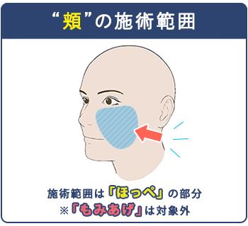 頬ヒゲの施術範囲