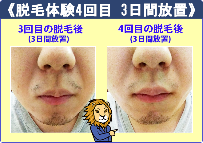 リンクスの髭脱毛4回目で髭を3日間放置した時の髭の具合