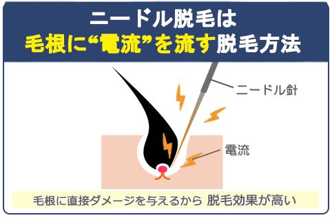 ニードル脱毛は毛根に電流を流して直接ダメージを与えるから脱毛効果が高い