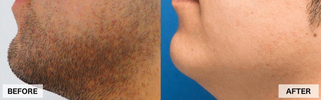 ゴリラクリニックの頬ヒゲ脱毛の効果
