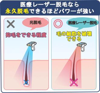 医療レーザー脱毛は毛の細胞を破壊するほどのパワーがあるので、頬ヒゲを永久脱毛できる。