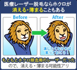 医療レーザー脱毛はのレーザーは、もともとホクロ除去用のレーザーだった。元がホクロ除去用だったので、施術を進めるうちにホクロが消える・薄まることがある。