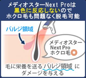 メディオスターNext Proは毛根の黒色ではなく、毛に栄養を送るバルジ領域にダメージを与える。黒色に反応しないので、ホクロ毛も問題なく脱毛できる。