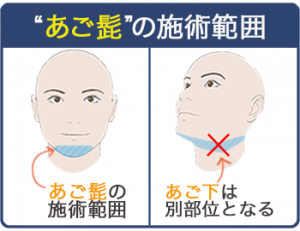 あご髭脱毛の施術範囲説明。あご髭はあごとあご下に別れ、あご下は含まれない。