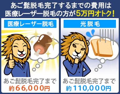 医療レーザー脱毛は光脱毛よりあご髭脱毛完了までの相場料金が5万円ほど安い