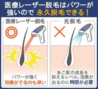 医療レーザー脱毛は照射パワーが強いので、光脱毛では不可能な永久脱毛が可能。