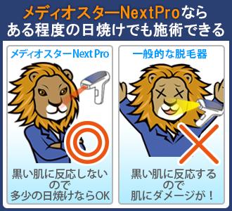 メディオスターNext Proは髭の黒い色に反応しないので、多少の日焼けにも対応できる