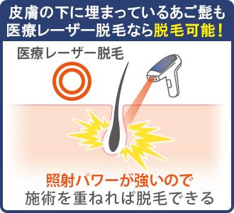 医療レーザー脱毛は照射パワーが強いので、皮膚の下に埋まっている埋没毛にも効果的