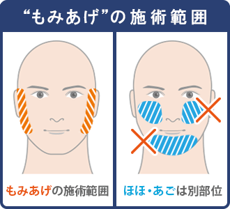 もみあげの脱毛範囲は顔の横部分で、ほほ・あごは別部位となる