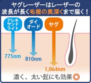 ヤグレーザーはレーザーの波長が長く、毛根の奥まで届くので太く、濃い髭にも効果的