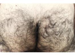 リンクスOライン脱毛前の写真