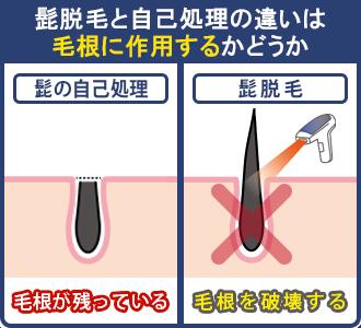 髭の自己処理と髭脱毛の違いは毛根に作用するかどうか。髭の自己処理は表面の髭だけ処理するので毛根が残るが、髭脱毛は毛根を破壊する。
