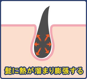 レーザーや光の熱の影響で髭に熱が溜まり膨張することで髭が固くなる