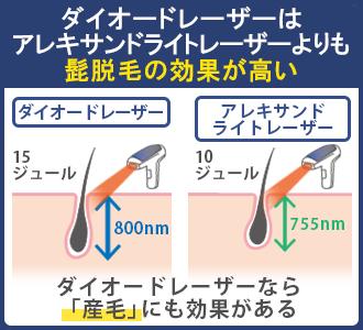ダイオードレーザーはアレキサンドライトレーザーよりも照射パワーが強く、波長も長いので産毛に効果があるほど髭脱毛効果が高い
