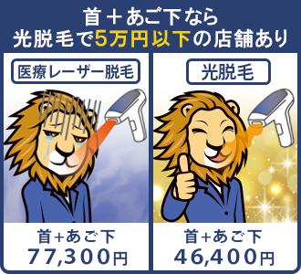 首とあご下のセットで受けると、店舗によっては光脱毛の方が首髭を5万円以下で安くツルツルにできる