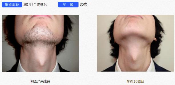 リンクスの首ヒゲ脱の効果