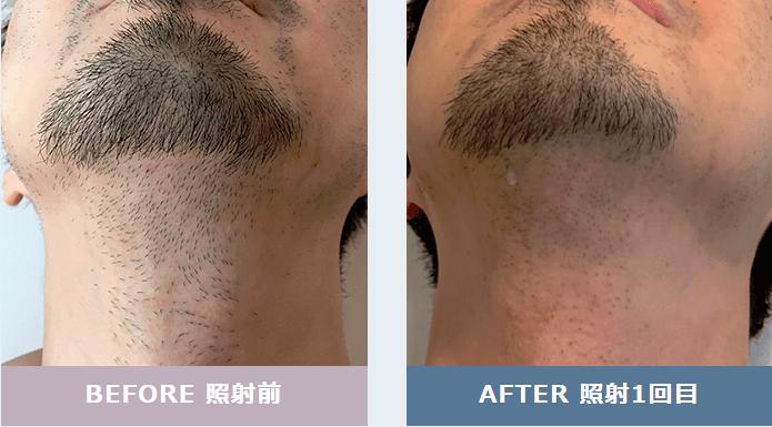 メンズリゼの首ヒゲ脱毛の効果