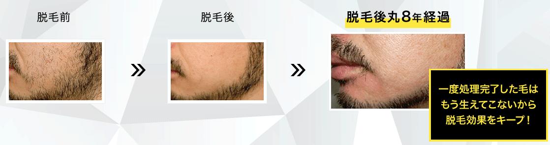 メンズTBCの髭のニードル脱毛の効果