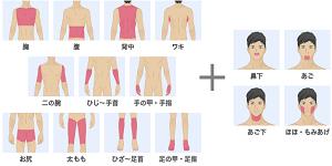 メンズリゼクリニックの全身脱毛と顔の髭の施術範囲