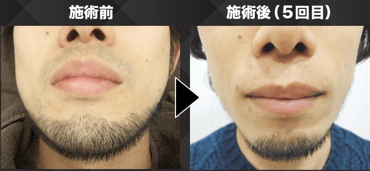 メンズリゼクリニックの髭脱毛:脱毛前と脱毛後の様子