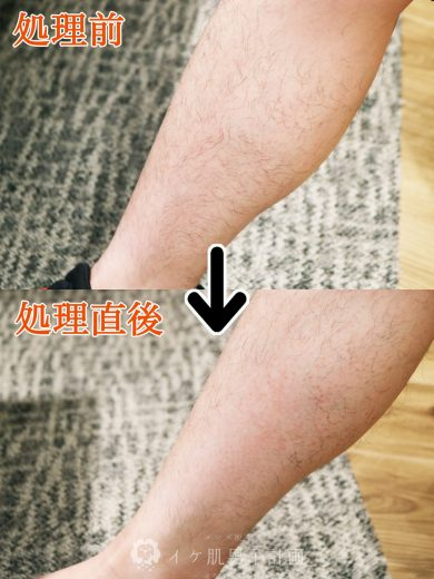 NULLハニーシュガーワックス使用前のすね毛から、NULLハニーシュガーワックス使用直後のすね毛