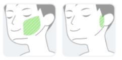 【湘南美容外科クリニック】ほほ・もみあげの範囲