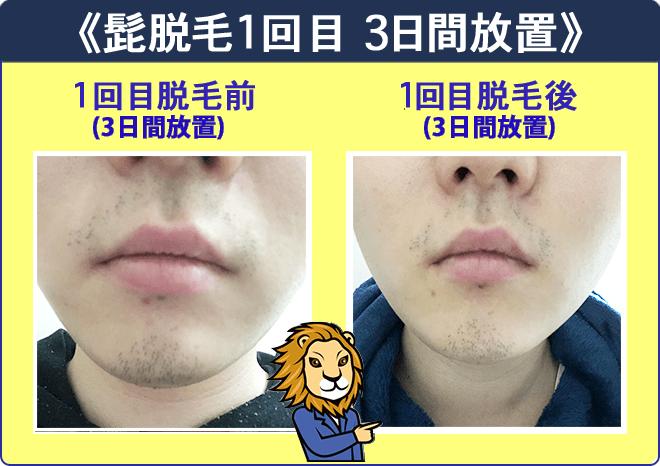 湘南美容外科クリニックの髭脱毛体験1回目脱毛前3日放置と1回目後3日放置