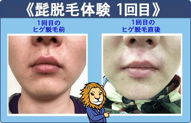 湘南美容外科クリニックの髭脱毛体験1回目