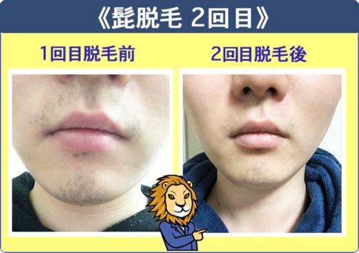 湘南美容外科の髭脱毛体験2回目と1回目