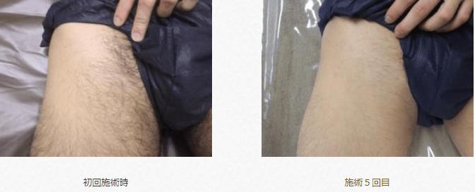 リンクスの脱毛効果の写真(Vライン)