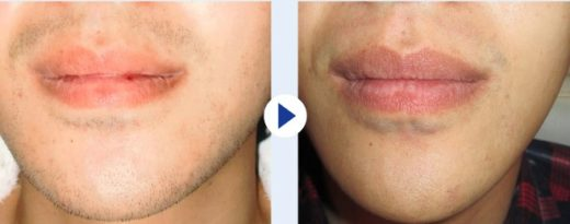 ラ・パルレの脱毛効果は美肌効果も得られる
