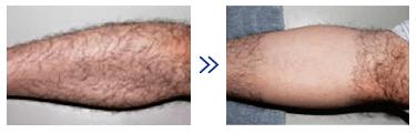 湘南美容外科の脱毛効果の一例