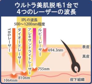 ウルトラ美肌脱毛1台で4つのレーザーの波長