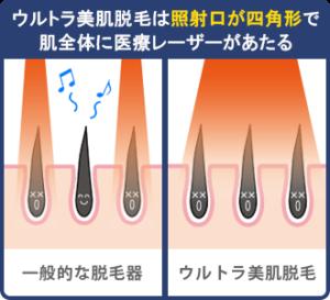 ウルトラ美肌脱毛は照射口が四角形で肌全体に医療レーザーが当たる