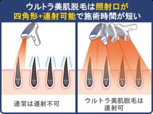 ウルトラ美肌脱毛は照射口が四角形+連射可能で施術時間が短い
