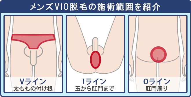 VIO脱毛の施術範囲は「Vライン・IラインOライン」に分かれる