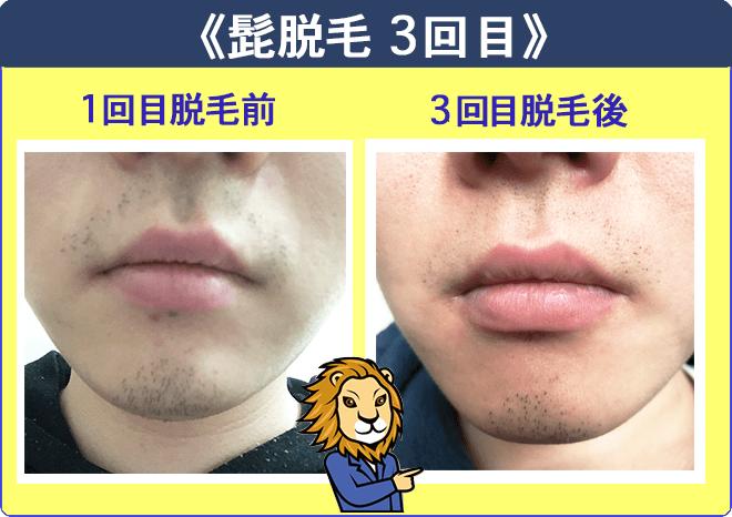湘南美容外科の髭脱毛体験3回目