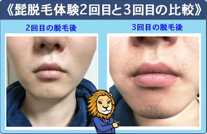 湘南美容外科の髭脱毛体験2回目と3回目比較