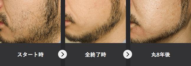 メンズTBC の髭脱毛の効の様子