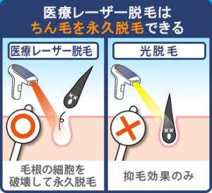 【記事内画像】医療レーザー脱毛はチン毛を永久脱毛できる