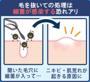 【記事内画像】毛を抜いての処理は細菌が感染する恐れアリ