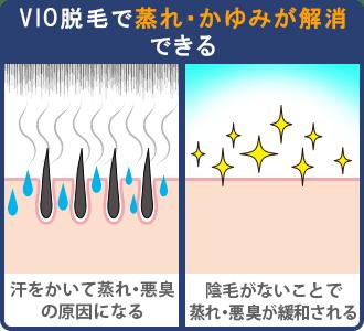 VIO脱毛で蒸れ・かゆみが解消できる