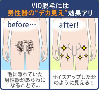 VIO脱毛には男性器のデカ見え効果アリ