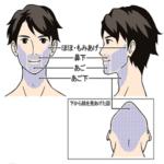 メンズリゼクリニックの髭脱毛の範囲