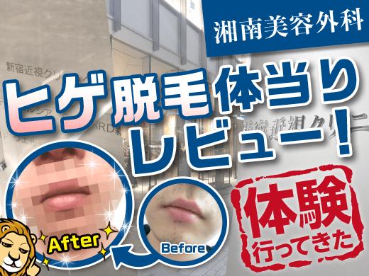 湘南美容外科「ヒゲ脱毛6回」を体験!経過写真で効果に迫る【5回目終了】